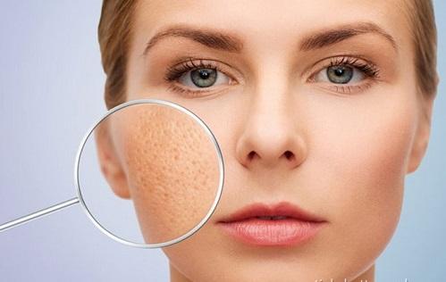 Trị sẹo lõm/rỗ ở đâu Hiệu quả - An toàn - Nhanh nhất giúp da mịn màng 2